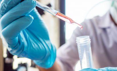 Pipeta Graduada, Pipeta Volumétrica e Pipeta Pasteur – Saiba as Diferenças.