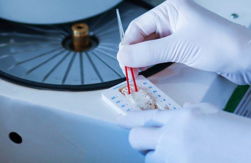 Centrífuga para Microhematócrito -Saiba Mais Sobre Esse Equipamento.