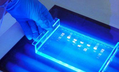 O que é Eletroforese? – Saiba Mais